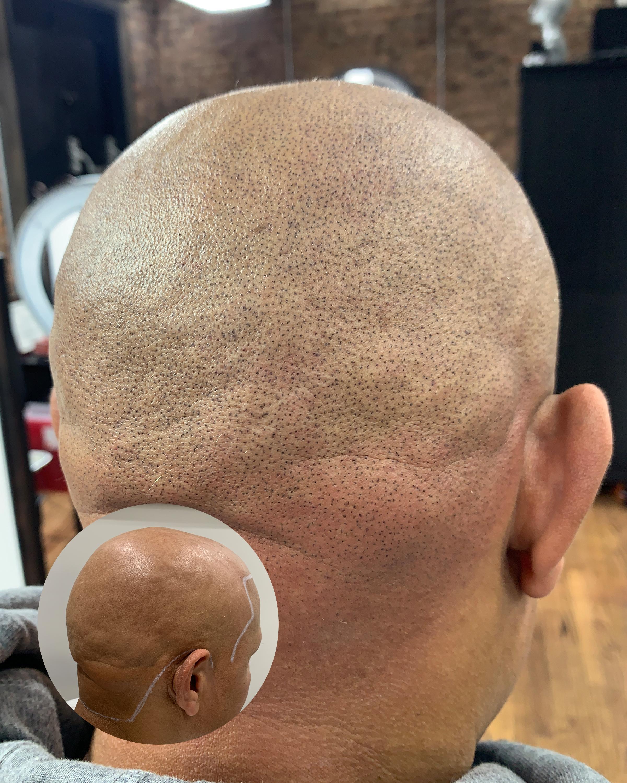 alopecia 4